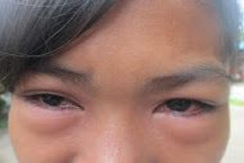 Ontstoken ogen