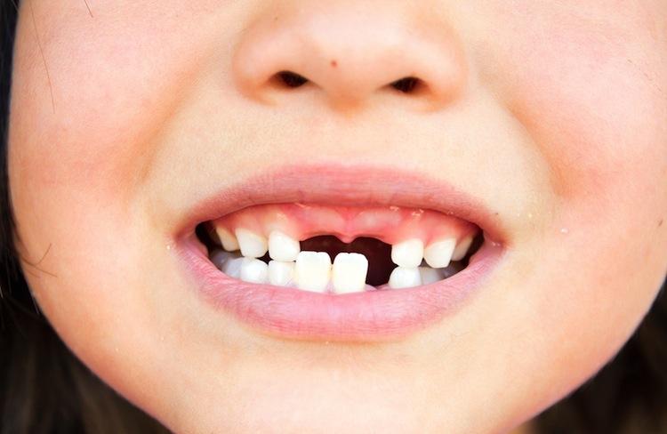 Dental Mission